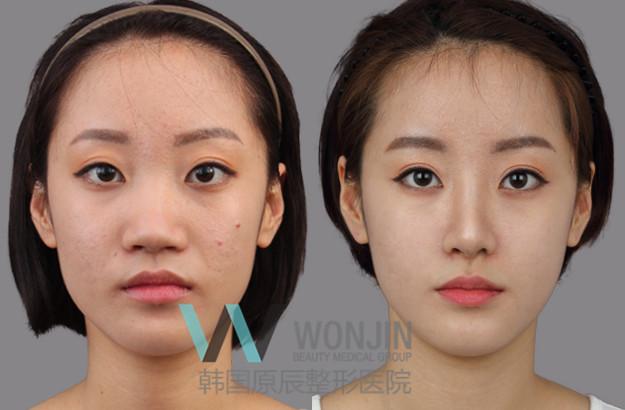 在韩国整鼻子多少钱_鼻子整形前后对比_韩国整形前后对比,整形前后对比照片图片