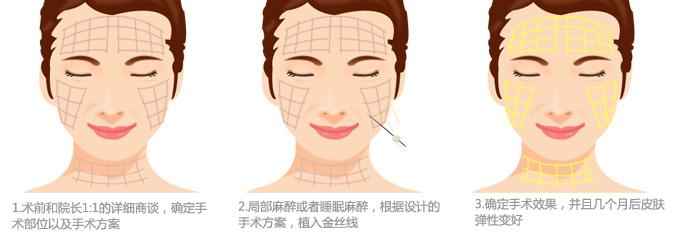 얼굴형태, 피부 탄력 상태, 원하는 교정 효과에 따라 실 주입 방향과 개수를 결정합니다.주름이나 처진 피부, 무너진 얼굴선이 잘 교정되도록 실을 주입합니다.시술 후 바로 효과를 확인하실 수 있으며, 콜라겐 재생효과로 더욱 탄력 있는 피부가 됩니다.
